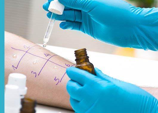 Dermatitis en los párpados