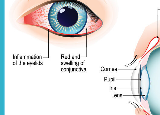 Enfermedades oculares en verano