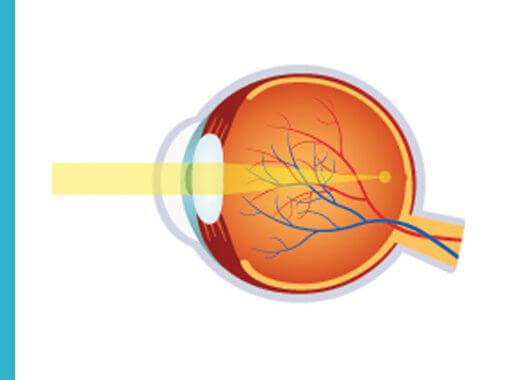 La miopía consiste en un defecto de la refracción ocular que impide visualizar correctamente los objetos lejanos.
