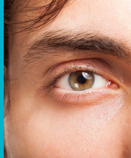Enfermedades que pueden afectar a tus cejas y pestañas