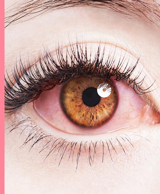 ¿Cómo maquillarse cuando tienes alergia ocular?