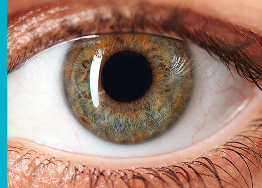 Que es la sinequia ocular