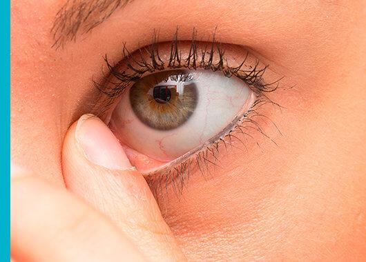 ¿Qué causa una infección en los ojos?