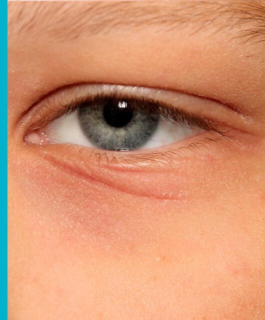Dermatitis atópica también en los ojos