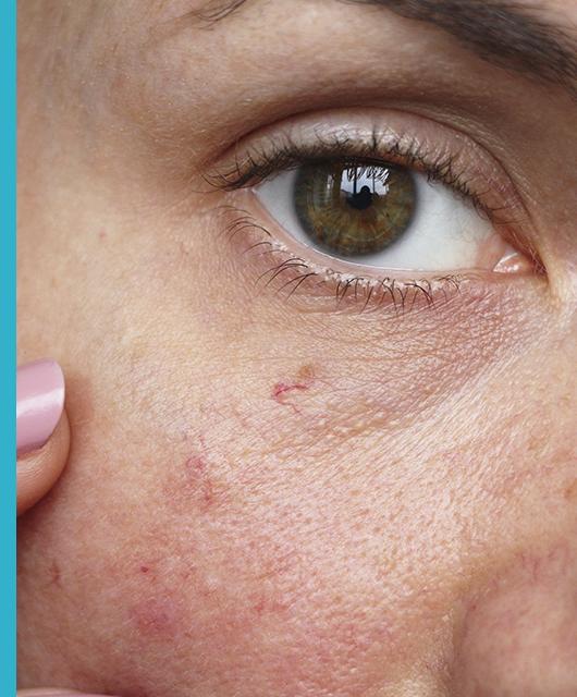 ¿Cómo afecta la piel sensible al ojo sensible?